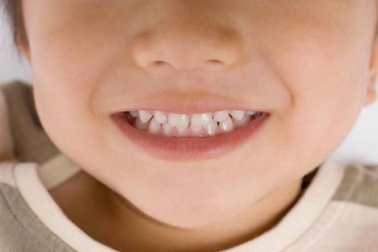 歯並びとむし歯の関係
